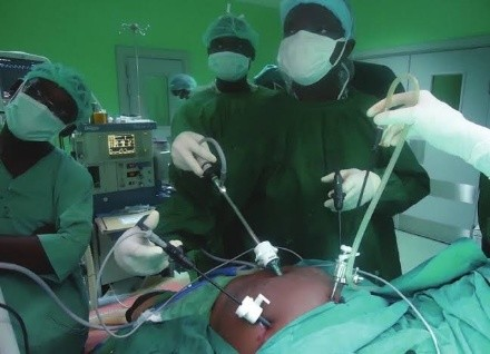 Cost of Laparoscopy in Nigeria